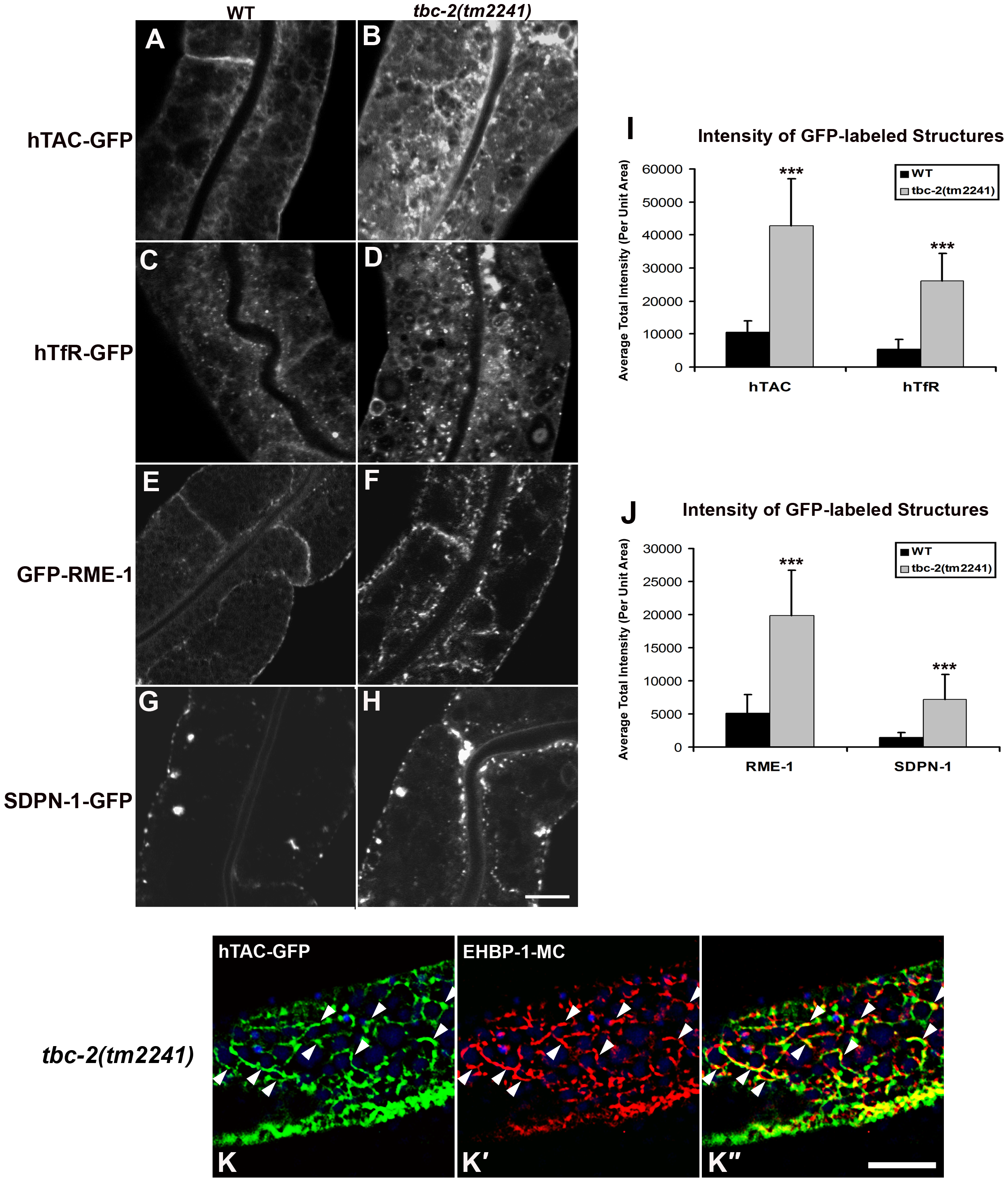 TBC-2 is required for recycling endosome morphology and function.