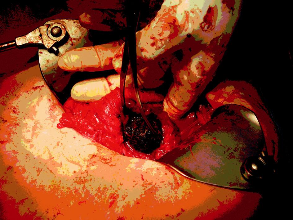 Odstraňování konkrementu z duodenotomie. Cholecystektomie je již provedená Fig. 8. The concrement removal via duodenotomy. Cholecystectomy has already been performed