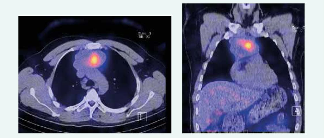 Zobrazenie tumoru pred 1. aplikáciou PRRT. Z archívu spoluautorky MUDr. M. Černej, CSc.