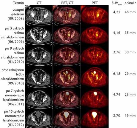 CT, fúzní PET/CT a PET axiální řezy nad úrovní stropu levého acetabula ukazující léčebný efekt režimu s thalidomidem a monoterapie lenalidomidem. Patrný je pokles zvýšené akumulace radiofarmaka vyjádřené semikvantitativně pomocí hodnoty SUV<sub>max</sub> (Maximum Standardized Uptake Value) a zmenšení velikosti patologické uzliny dorzálně od společných ilických cév vlevo (šipka). Nárůst SUV<sub>max</sub> z 3,76 na 6,15 v období mezi léčebnými liniemi odpovídá progresi onemocnění, ke kterému zřejmě došlo jednak při málo účinné terapii tocilizumabem (leden roku 2010–březen roku 2010) a dále pak v době před zahájením léčby s lenalidomidem, kdy byl pacient přechodně ponechán bez aktivní terapie (srpen roku 2010–září roku 2010). Naopak v poslední studii (leden roku 2012) již sledovaná uzlina nevykazuje hypermetabolizmus fluorodeoxyglukózy a na PET vyšetření se tedy nezobrazuje.
