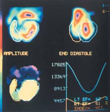 Metoda rovnovážné radionuklidové ventrikulografie v klidu u pacienta s chronickou těžkou aortální regurgitací. Levá komora je dilatovaná s opožděnou kontrakcí na fázovém obraze a abnormální hodnotou amplitudy na horním septu. Regurgitační index 4,53 je velmi zvýšen (normálně 1–1,7).