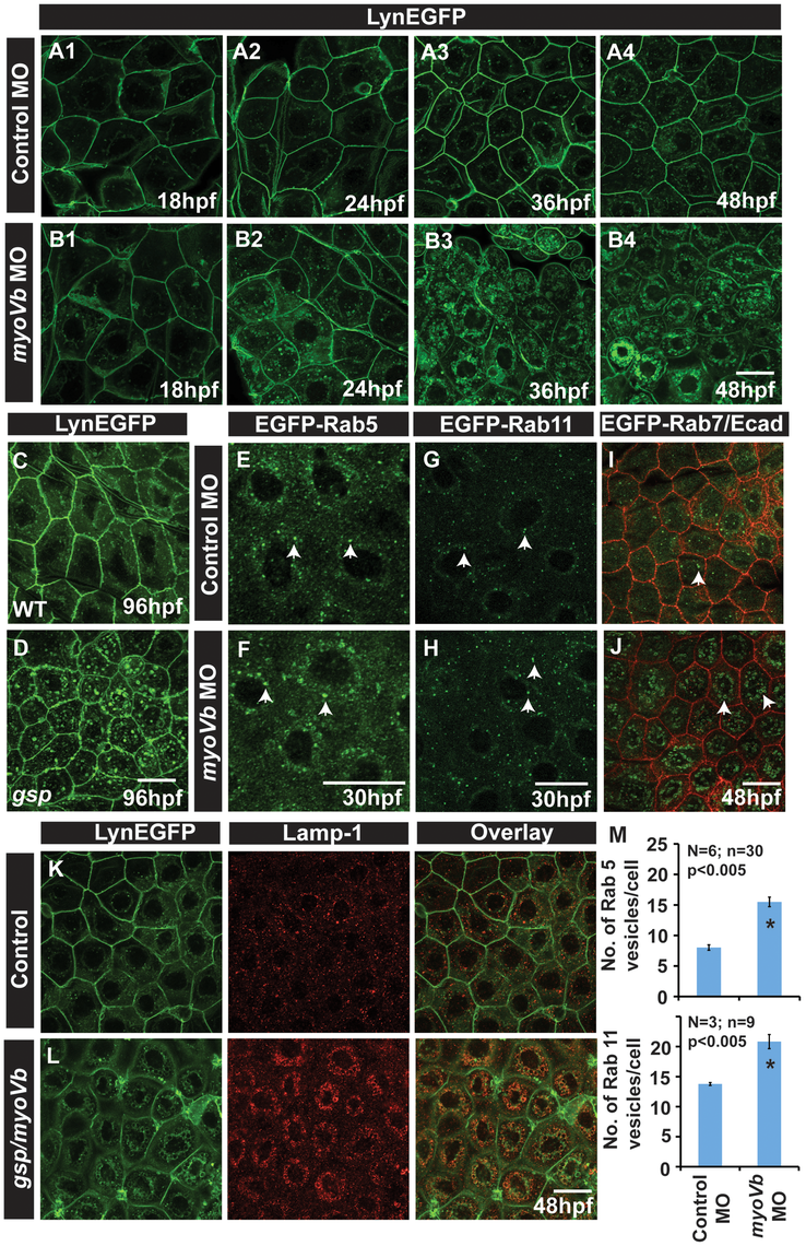 In absence of Myosin Vb, endosomes and lysosomes accumulate in the cytoplasm of peridermal cells.
