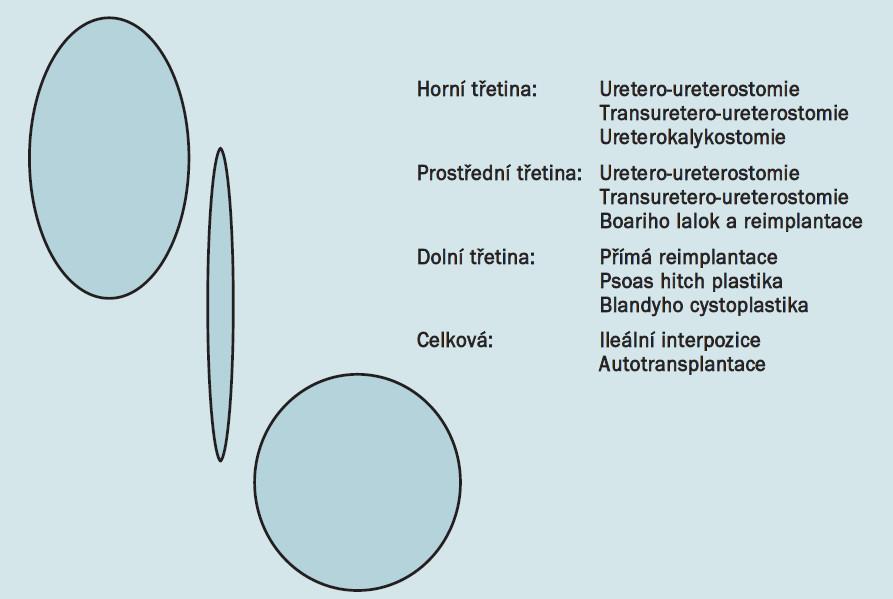 Schéma 3. Diagram možností rekonstrukce úplných poranění, založený na místě poranění.