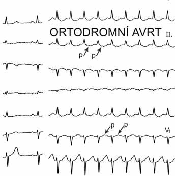Atrioventrikulární reentry tachykardie (AVRT) – ortodromní forma. Posledních 9 QRS-komplexů je následováno P-vlnami (označené šipkami), které jsou 160 ms za počátkem QRS-komplexu, nicméně leží v 1. polovině RR-intervalu a jde tedy o tachykardii s krátkým RP-intervalem. Vzdálenost P-vln více jak 90 ms od začátku QRS-komplexu odlišuje tuto arytmii od typické AV nodální reentry tachykardie.
