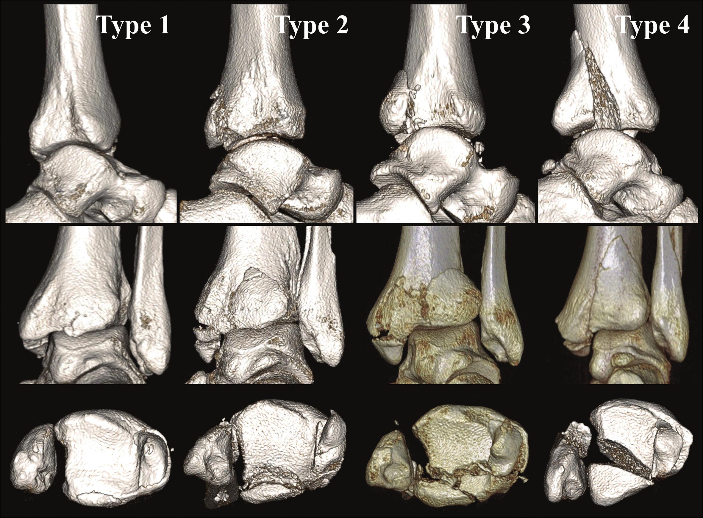 Anatomická 3D CT klasifikace z r. 2015 [34] Jednotlivé typy z Obr. 6 na 3D CT rekonstrukcích. Typ 1 – extraincisuralní fragment, Typ 2 – posterolaterální fragment, Typ 3 – dvojitý fragment s postižením mediálního kotníku, Typ 4 – velký triangulární fragment. Horní pás ukazuje jednotlivé typy v pohledu z laterální strany po subtrakci fibuly. Je dobře hodnotitelné postižení incisura fibularis tibiae. Ve středním pásu pohled z dorzální strany. Zde je patrný základní tvar fragmentu. V dolním pásu pohled do tibiofibulární vidlice po subtrakci talu. V tomto pohledu lze hodnotit rozsah postižení kloubní plochy distální tibie. Fig. 10: Anatomical 3D CT classification published in 2015 [34] Individual types from Fig. 6 on 3D CT reconstructions. Type 1 – extraincisural fragment, Type 2 – posterolateral fragment, Type 3 – two- part fragment with involvement of medial malleolus, Type 4 – large triangular fragment. Figures in the upper row show individual fracture types from the lateral view after subtraction of the fibula, allowing proper assessment of involvement of the incisura fibularis tibiae; the middle row includes figures from the posterior view, showing the basic shape of the fragment; and figures in the lower row show the tibiofibular mortise after subtraction of the talus, allowing assessment of involvement of the articular surface of the distal tibia.