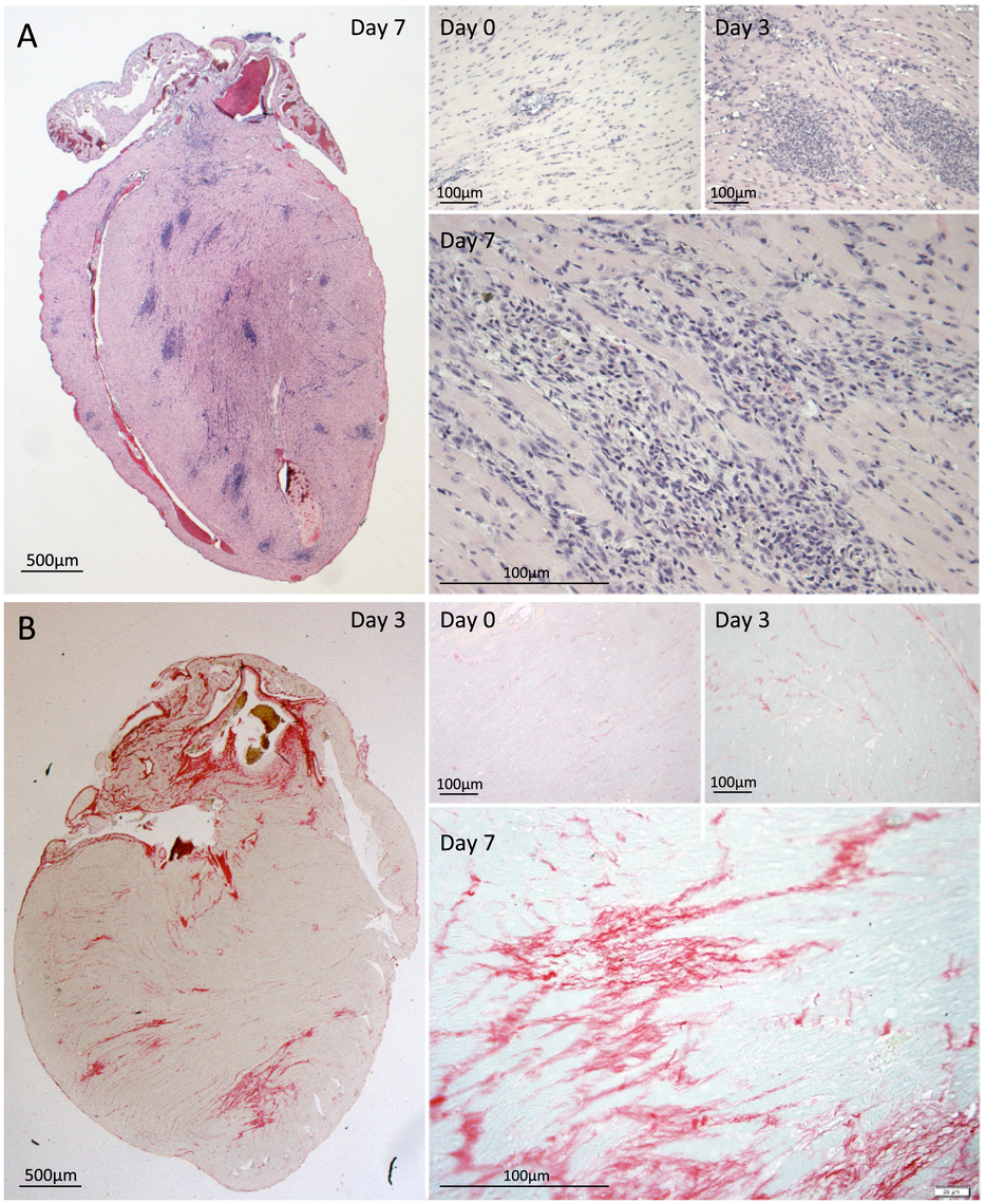 Immune cell infiltration and collagen deposition following antimicrobial therapy.