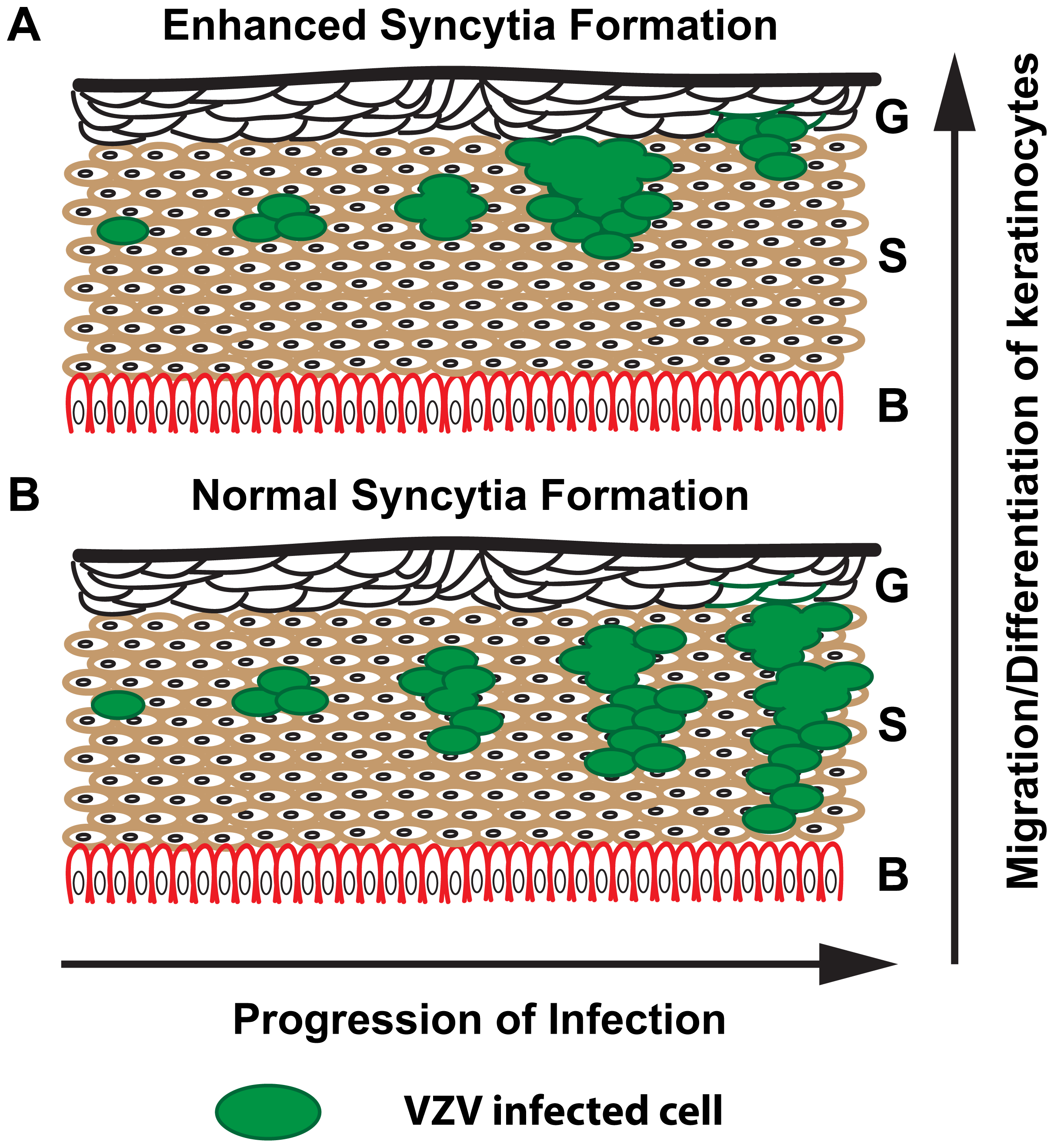 Proposed model for limited skin pathogenesis of VZV caused by exaggerated syncytia formation.