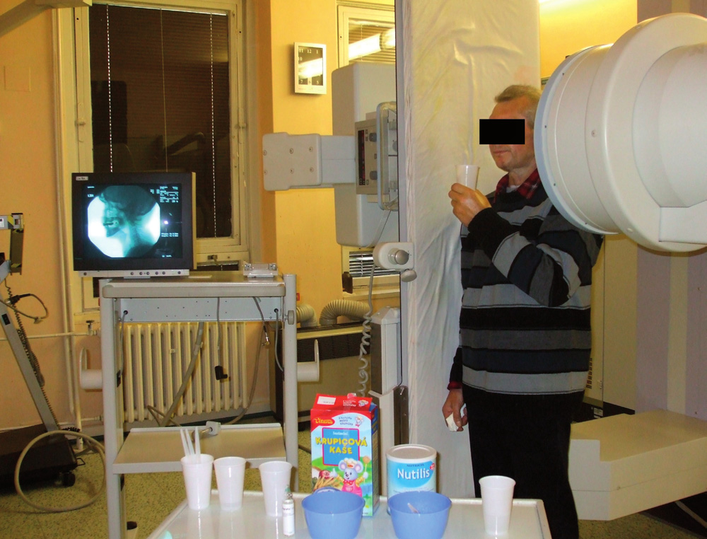 Videofluoroskopie - ilustrační foto (zdroj spoluautorka).