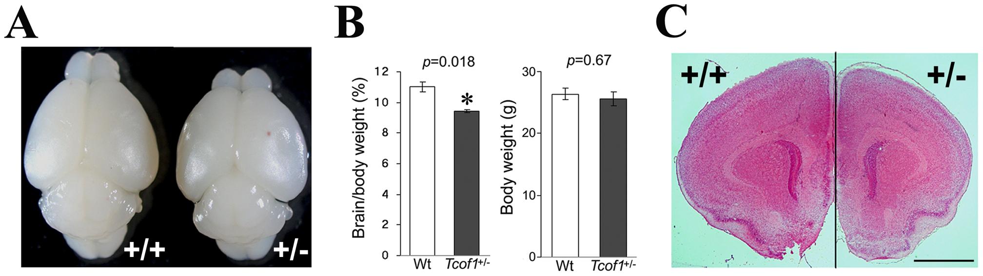 <i>Tcof1</i> heterozygous mutant mice show small brain.