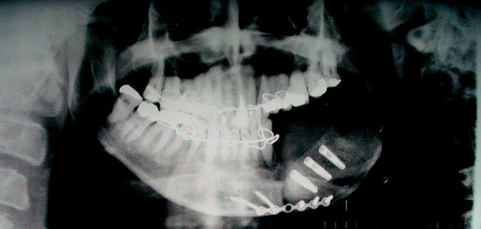 Stav po přenosu kostního štěpu se zavedenými implantáty – Rtg PAN.