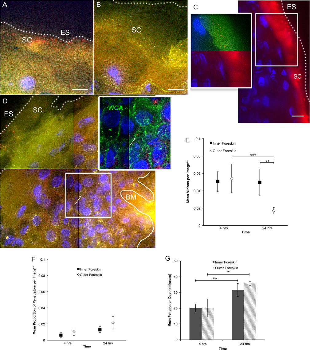 <i>Ex vivo</i> PA GFP HIV-1 interactions with adult human foreskin tissues.
