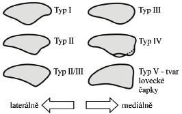 Wiberg-Baumgartlova klasifikace dysplazie pately. Fig. 1. Wiberg-Baumgartl classification of patellar dysplasia.