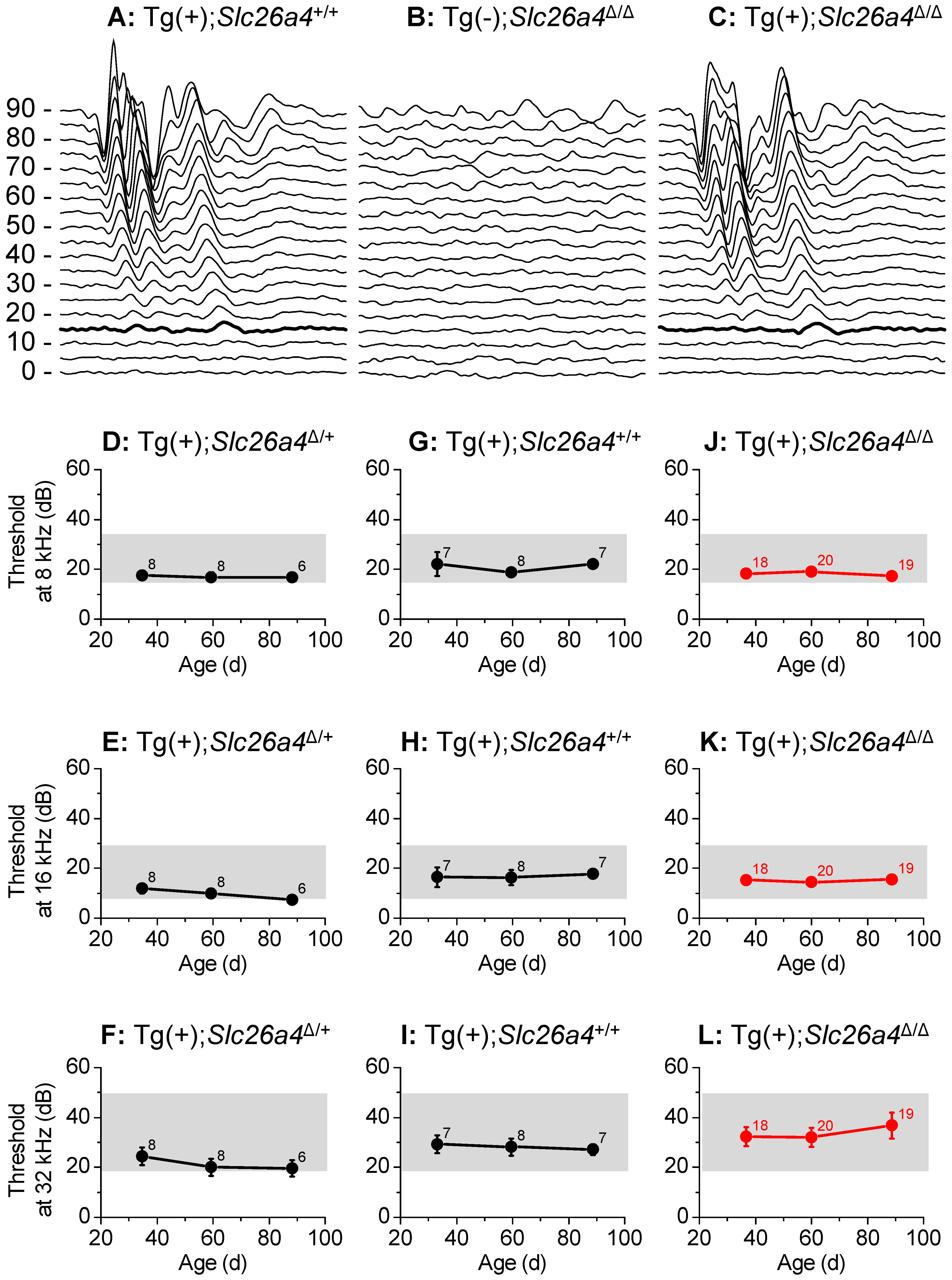 Hearing tests based on auditory brain stem responses.