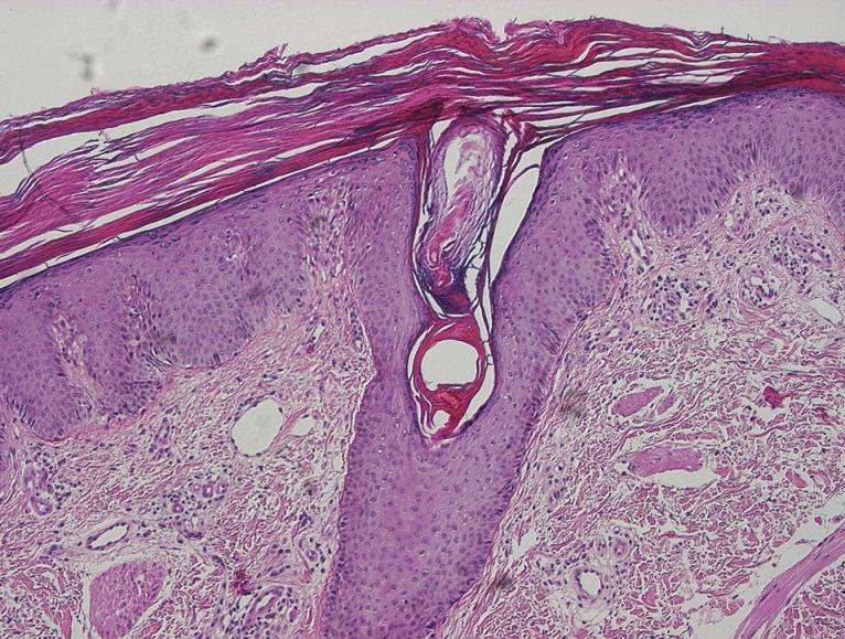 Klasická pityriasis rubra pilaris: folikulárně akcentovaná hyperkeratóza s šachovnicovitě se střídajícími úseky parakeratózy, hypergranulóza