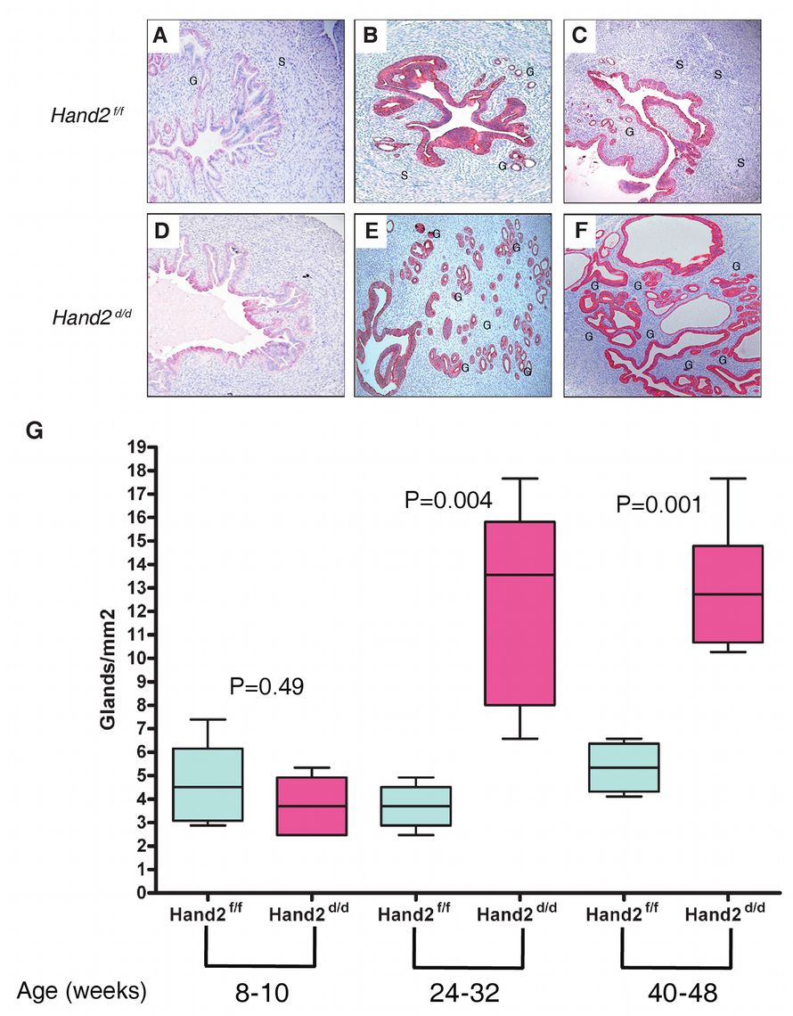 Endometrial hyperplasia in <i>Hand2</i> conditional knock-out mice as a function of age.