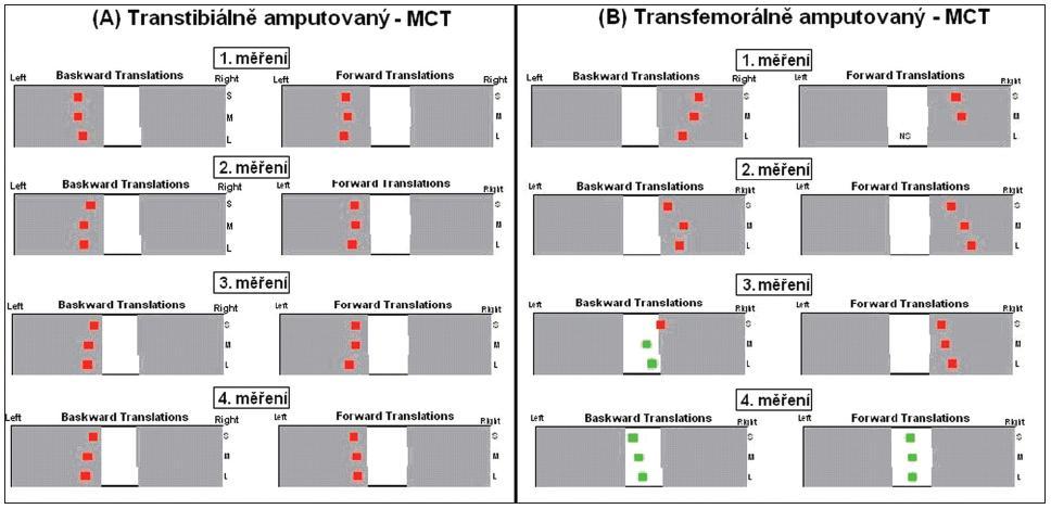 Relativní zatěžování dolních končetin pro jednotlivá měření při MCT, jak je uvedeno ve výsledném protokolu z posturografických měření. Jedná se o grafické znázornění hodnot z tabulky 1. <em>Legenda:</em> Left - levá strana, Right - pravá strana, Backward translation - translace dozadu, Forward translation - translace dopředu, S - pomalá translace, M - středně rychlá translace, L - rychlá translace. <em>Poznámka: Pokud jsou výsledné hodnoty vyznačeny zeleně, je relativní zatížení končetin považováno za fyziologické a jedná se o rozdíl ≤ 10 % (19).</em>