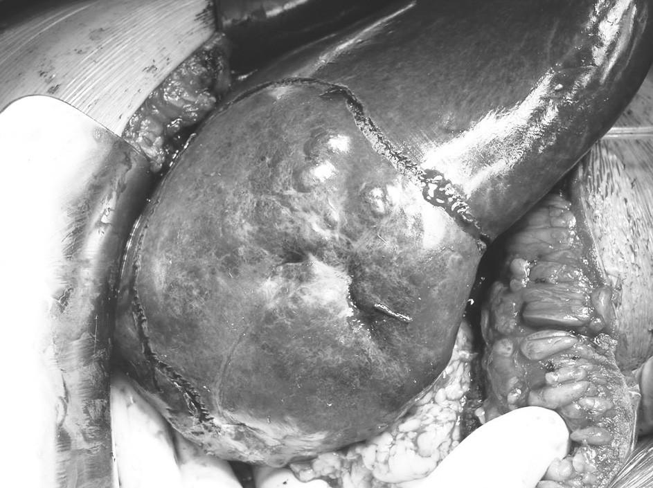 Kavernózní hemangiom pravého laloku jater před enukleací – elektrokoagulací vyznačená linie enukleace Pic. 3. Cavernous hemangioma of the right liver lobe prior to enucleation – electrocoagulated enucleation line