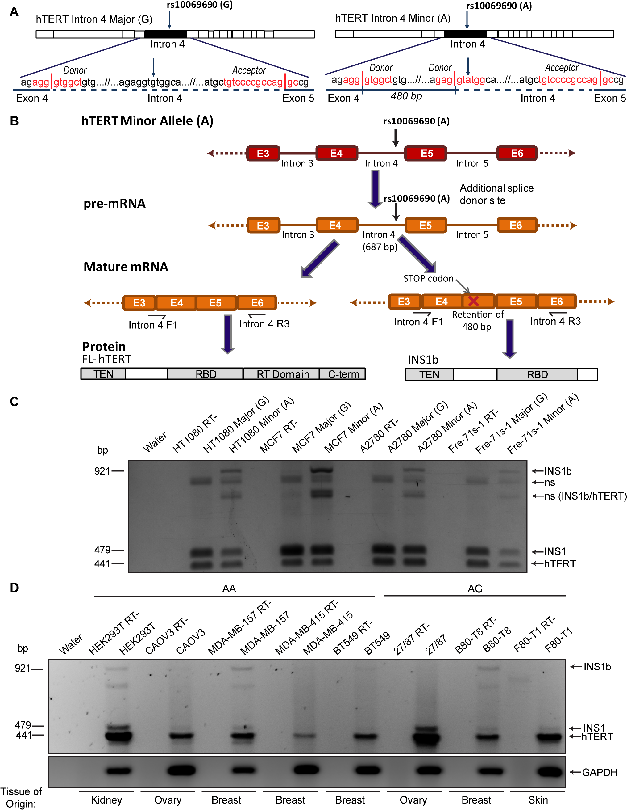 Cancer-associated rs10069690 minor allele results in alternative splicing of hTERT.