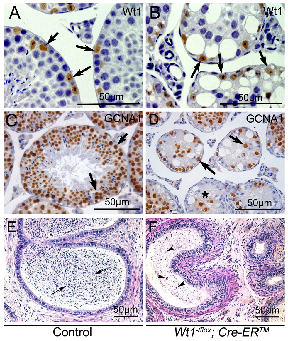 Loss of <i>Wt1</i> results in germ cell death: IHC and H &amp; E staining of testes 3 weeks after Tamoxifen treatment.