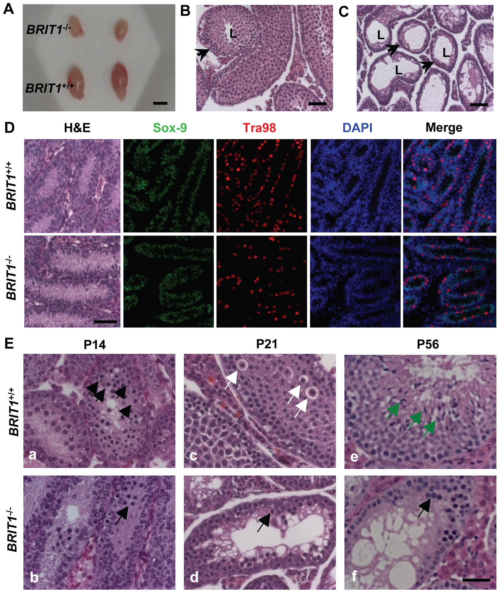 <i>BRIT1</i>-deficient male were infertile and exhibited meiotic defects.