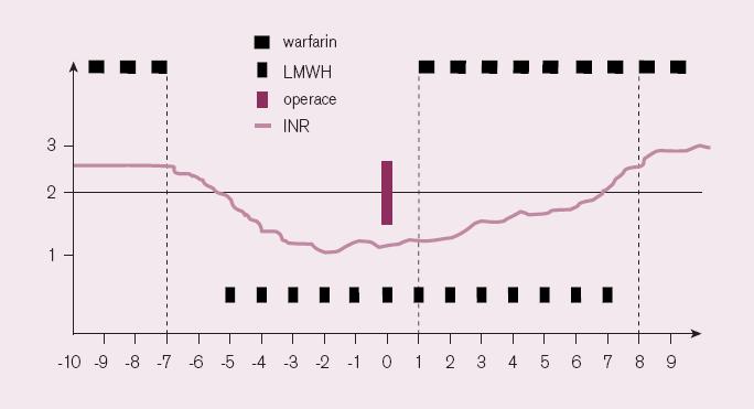 Použití LMWH k přemosťující léčbě v rámci přípravy výkonu, upraveno dle [26].