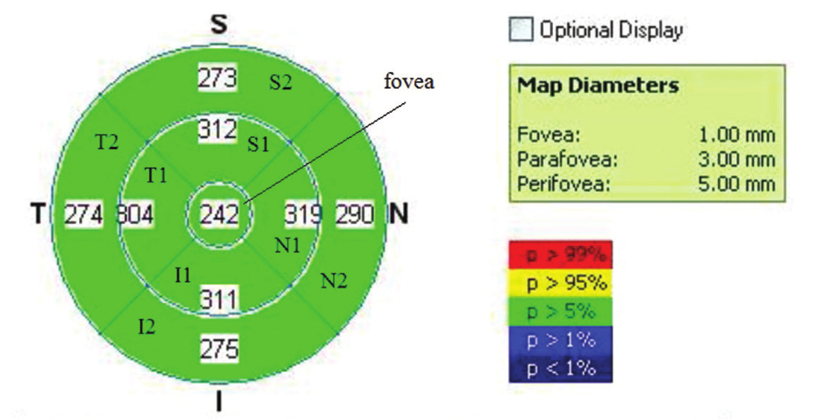 Vzor skenu EMM5 s popisem jednotlivých oblastí