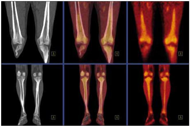 PET-CT zobrazení dolní končetiny. Při CT zobrazení je zřetelné zesílení kortikalis v oblasti tibie i femuru a při fúzi PET-CT pak patologicky zvýšená akumulace fluorodeoxyglukózy v těchto oblastech.
