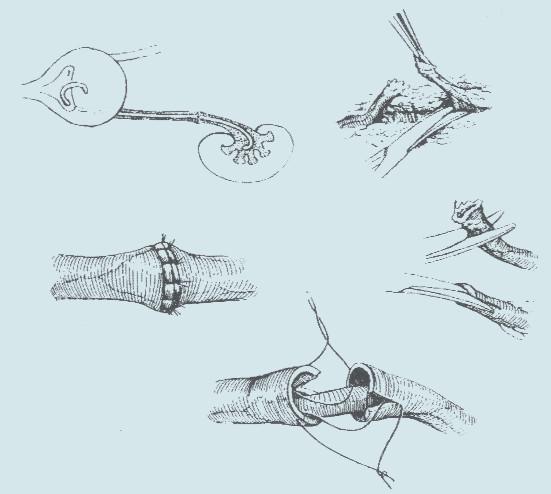 Postup při uretero-ureterostomii.