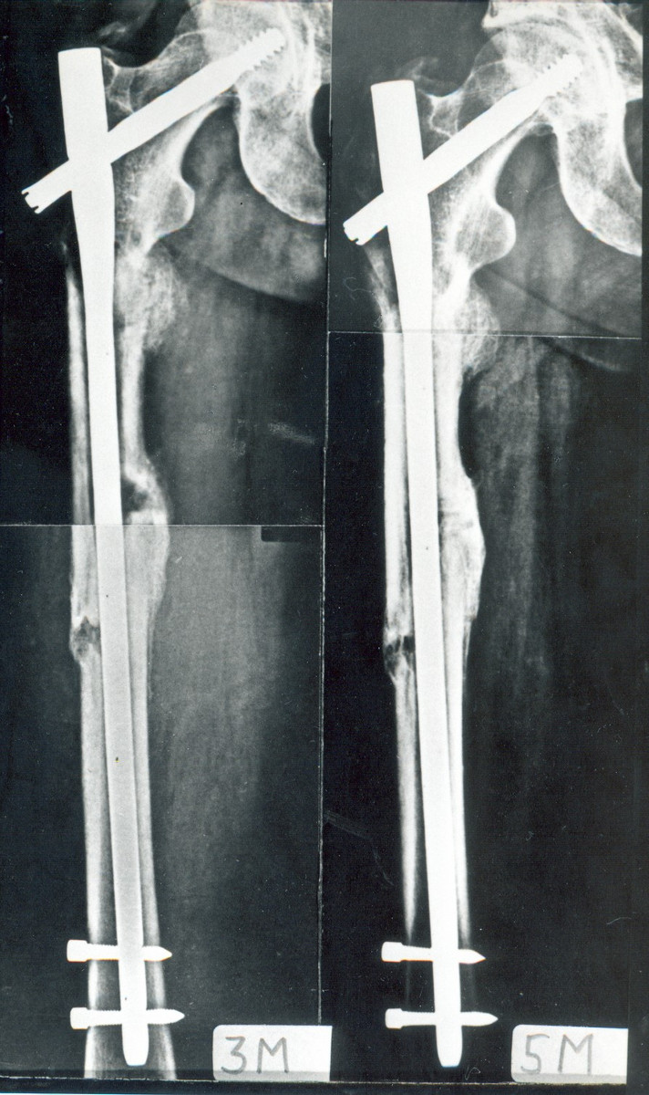 Obr 5d-e Stav 3 měsíce od operace, subtrochanterická zlomenina je zhojená, zlomenina diafýzy se hojí svalkem, postavení fragmentů je beze změn, e) stav 5 měsíců od operace, zlomenina diafýzy se hojí mohutným svalkem, linie lomu je již minimálně patrná