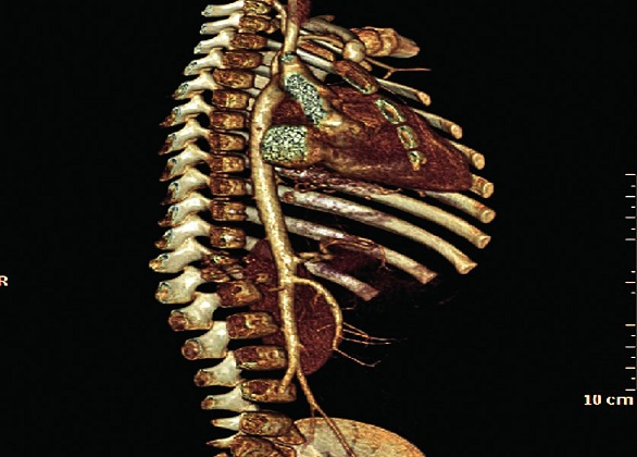 Spondylodiscitída Th12–L1 so zbortením tiel, rekonštrukčné snímky.