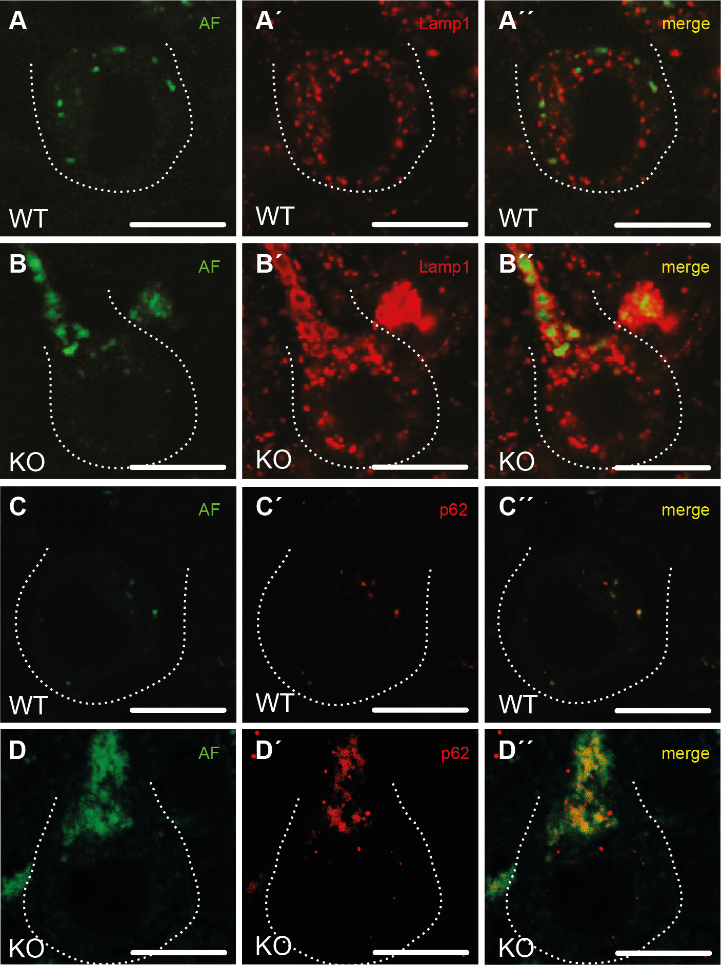 Purkinje cells in Spatacsin knockout mice accumulate abnormal autolysosomes.