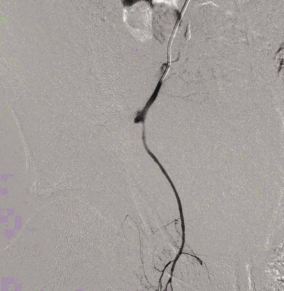 Angiografický obraz krvácení (větev <em>arteria glutae superior</em>)