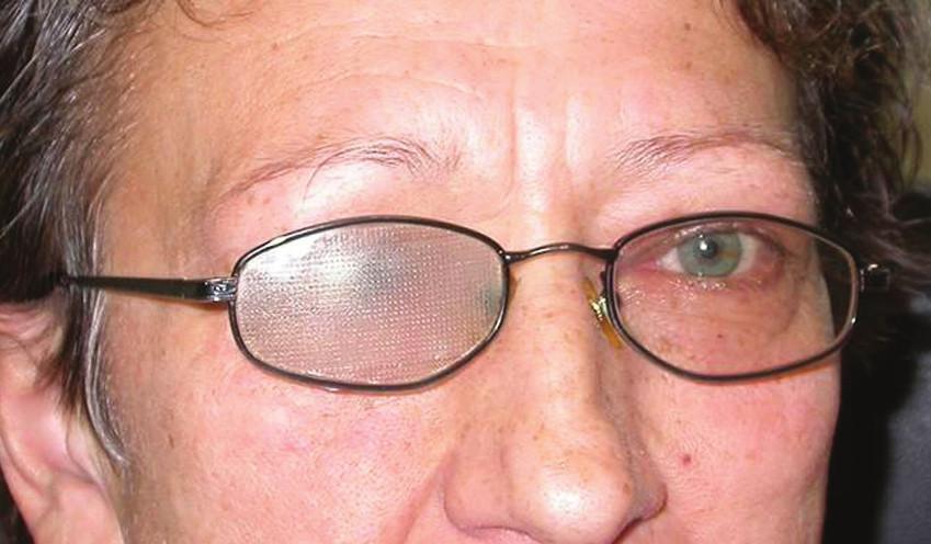 a,b Semitransparentní náplast si pacienti sami lepí na brýlové sklo. Mohou ji dle potřeby stříhat a použít i pro částečnou okluzi