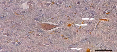 Histologická verifikace prorůstání axonů anastomózou – přítomnost křenové peroxidázy (HRP, rezavé částečky) v modifikovaném ventrálním míšním kořeni, zvětšení 50× Fig. 9. Histological verification of axonal penetration through anastomosis. Horse-radish peroxidase (foxy particles) in modified ventral spinal root. Zoom 50×