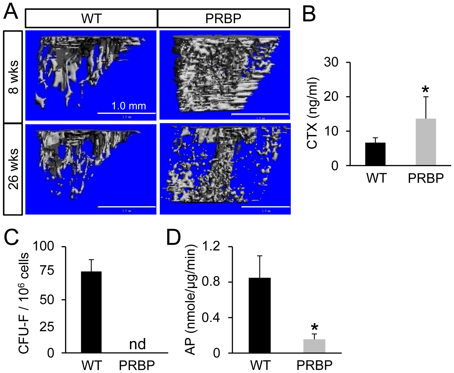 Bone loss in PRBP mice at 26 weeks of age.