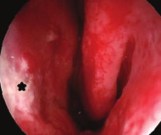 Endoskopický pohled do levé nosní dutiny s atrofickou sliznicí na nosní přepážce (*). Tento obraz se může vyskytnout i po dlouhodobé aplikaci lokálních kortikosteroidů.