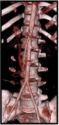 Angio CT snímky jater: Poranění jater IV. stupně s nálezem krvácení z poranění arteria hepatica propria
