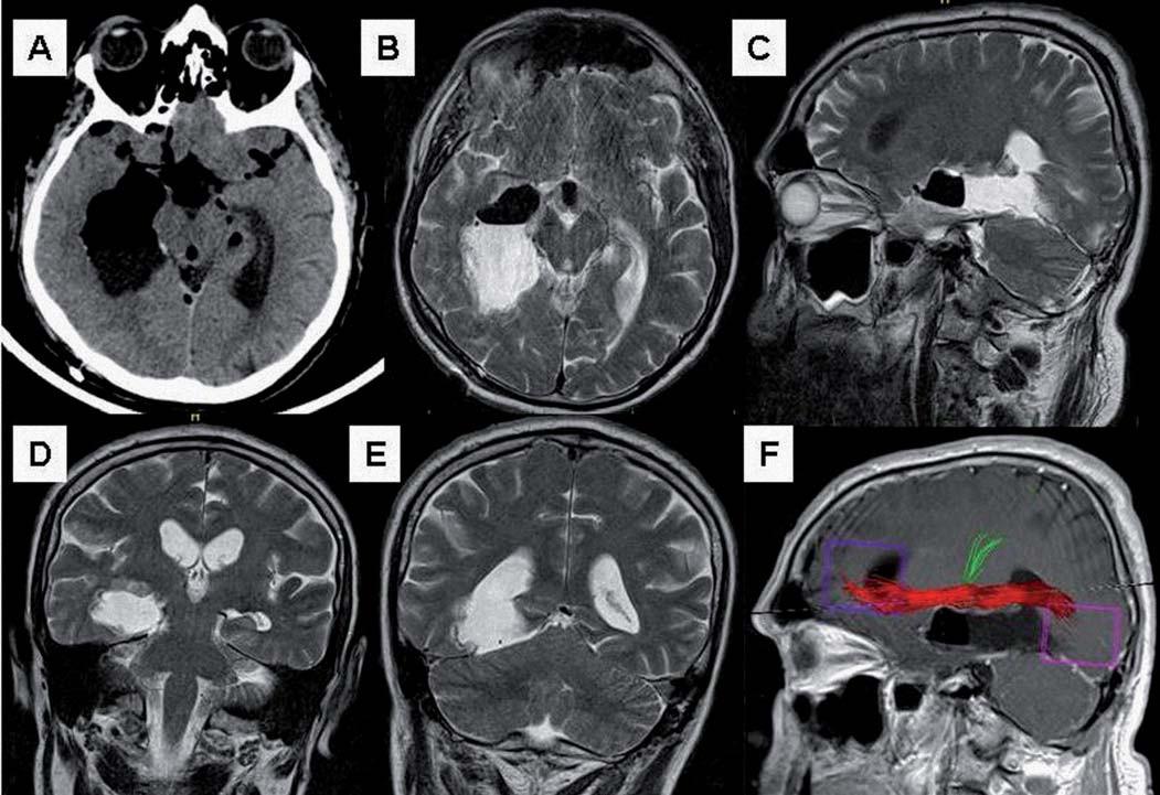Pooperační grafické zobrazení. Obr. 4a) Časná CT před extubací pacienta, povšechný pneumocefalus v bazálních cisternách a komorovém systému daný polohou v polosedě, patrné je dosažení Sylvijské cisterny. Obr. 4b) Axiální sken T2W MR (2. den po operaci). Obr. 4c) Sagitální sken T2W MR (2. den po operaci).  Obr. 4d) Koronární sken v úrovni střední části mediobazálního temporálního komplexu (2. den po operaci). Obr. 4e) Koronární sken v úrovni zadní části mediobazálního temporálního komplexu v úrovni transcidovaného tentoria, zobrazena široká komunikace s atriem postranní komory (2. den po operaci). Obr. 4f) Pooperační traktografie zobrazující intaktní okcipito-frontální fasciculus nad postresekční dutinou (červeně), pyramidová dráha (zeleně).