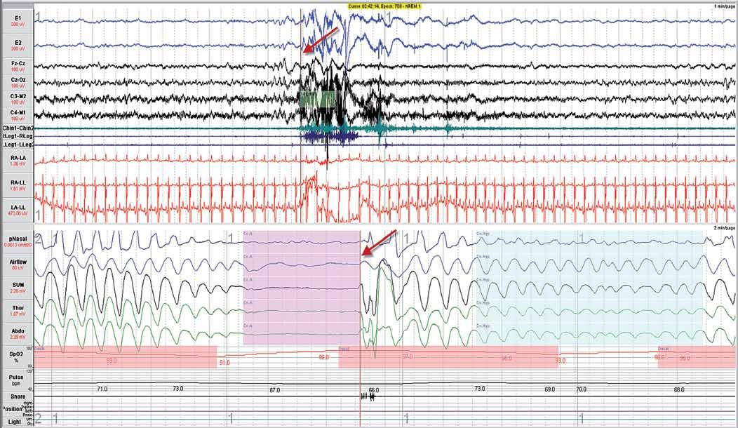 Příklad centrální spánkové apnoe (vlevo) a hypopnoe (vpravo). Ze záznamu nejsou patrné paradoxní pohyby břicha (Abdo) a hrudníku (Thor). Šipky ukazují na místo se stejným časem v polysomnografickém záznamu, kdy respirační událost je doprovázena probouzecí reakcí (arousal). Definice jednotlivých snímaných signálů je uvedena v části: Hodnocení polysomnografického záznamu.
