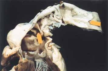 Aorta u Marfanova syndromu. Kořen aorty je dilatovaný a vidíme dvě zhojené disekční trhliny (šipky).