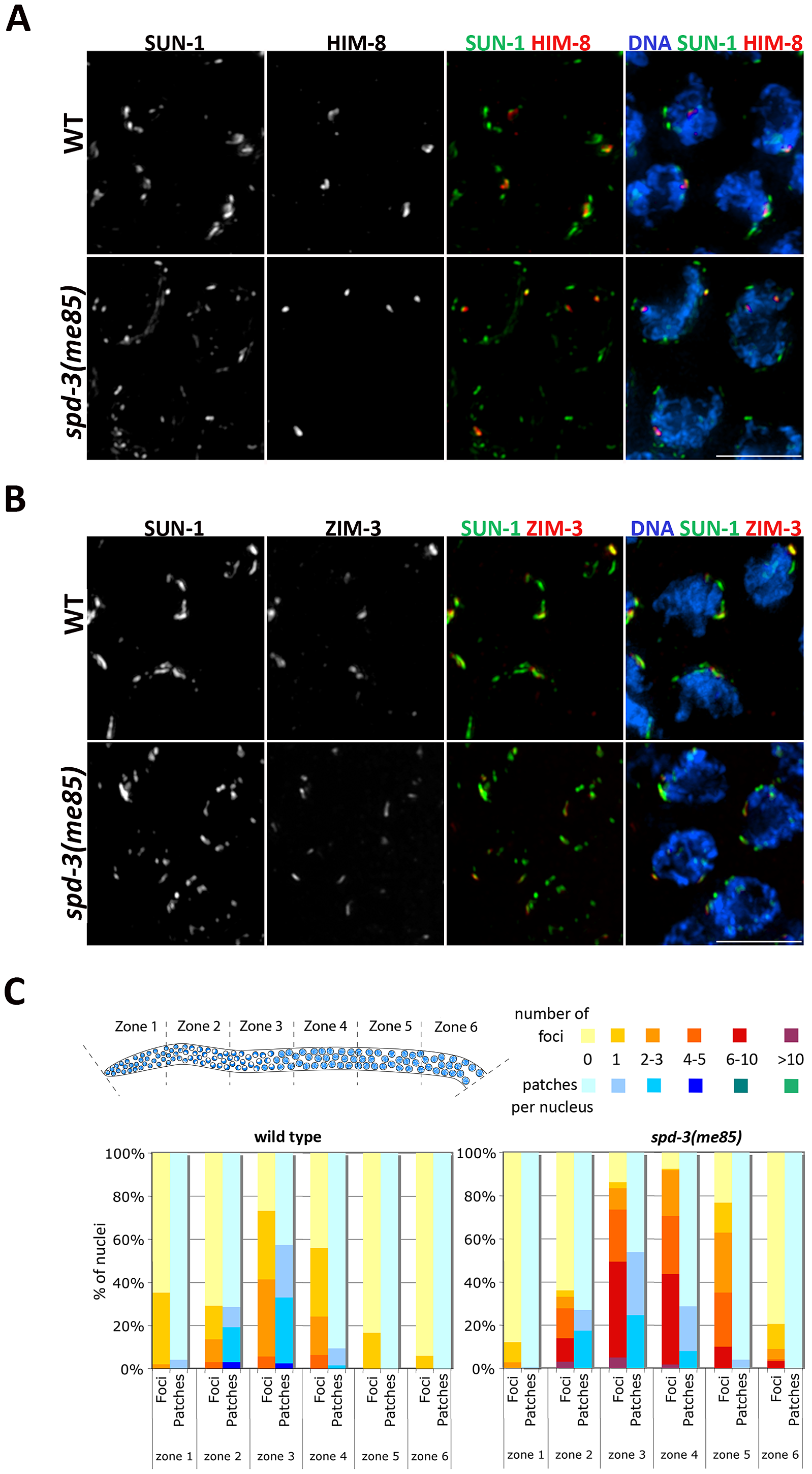 Localization of PC proteins to the NE in <i>spd-3(me85)</i> mutants.