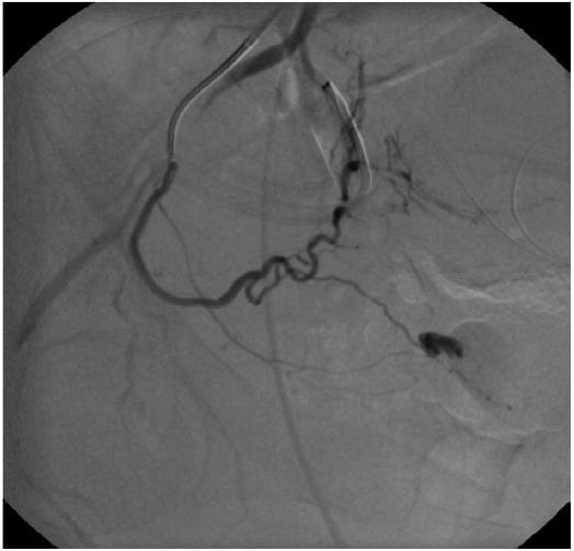 Obr. 1D. Druhostranná angiografie arteria uterina prokazuje rovněž extravazát kontrastní látky