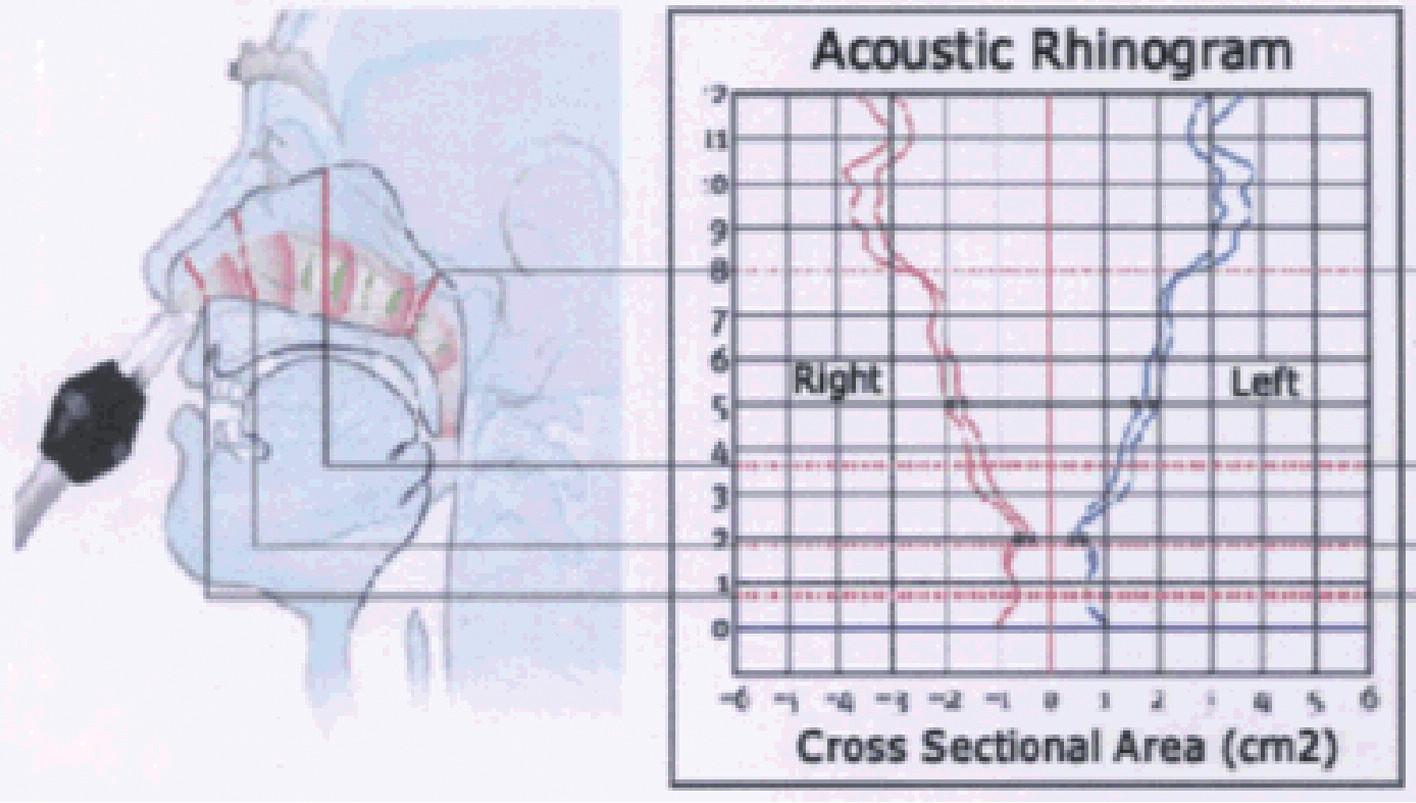 Akustický rinogram s grafickým znázorněním korespondujících oblastí v nosní dutině. Převzato z propagačních materiálů Interacoustics AS