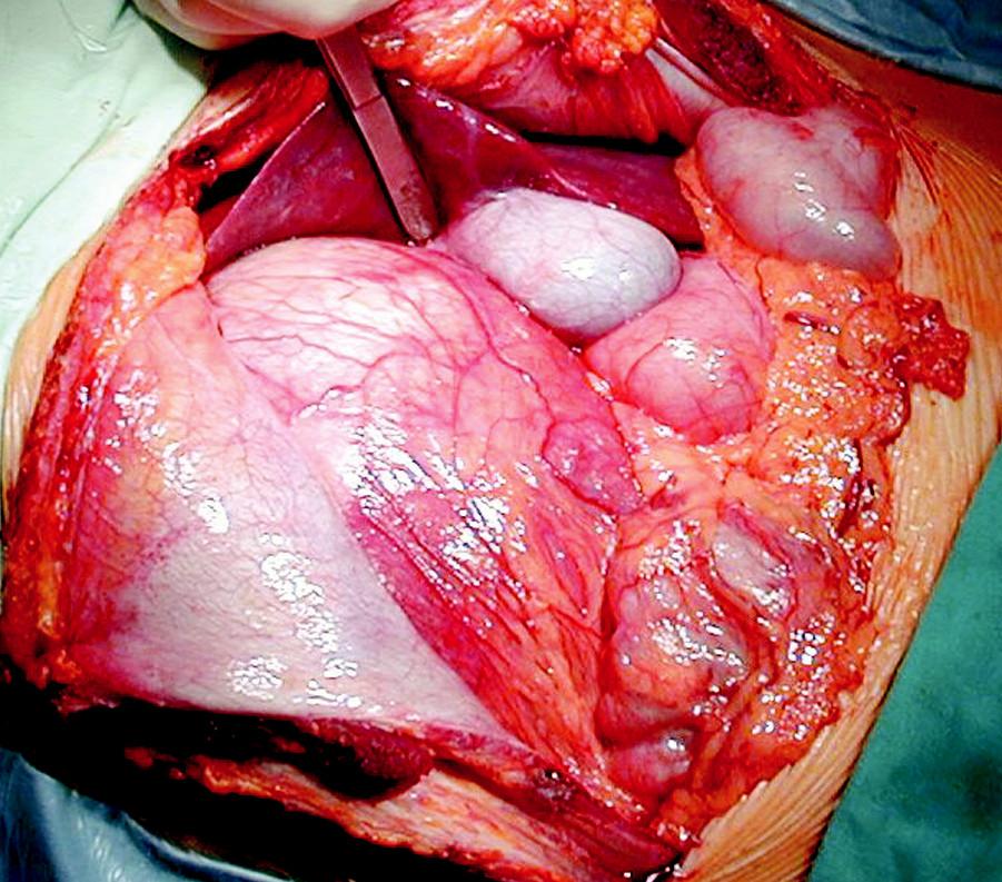 Po otvorení brušnej dutiny zisťujeme tumor v pravom hypochondriu, fixovaný k pečeni, bránici a smerom do retroperitonea. Vidieť priame naliehanie na cholecystu. Fig. 2. Upon abdominal incision, a tumor is detected in the right hypochodrium, attached to the liver, diaphragm and towards retroperitoneum. It is in a direct contact with the gallbladder.