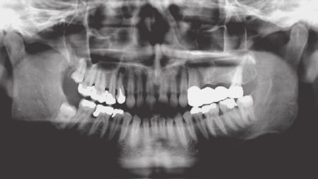 Přehledný rentgenový snímek chrupu zachycující horní i dolní čelist včetně části dutiny maxilární a dutiny nosní a čelistní klouby (tzv. ortopantomogram).
