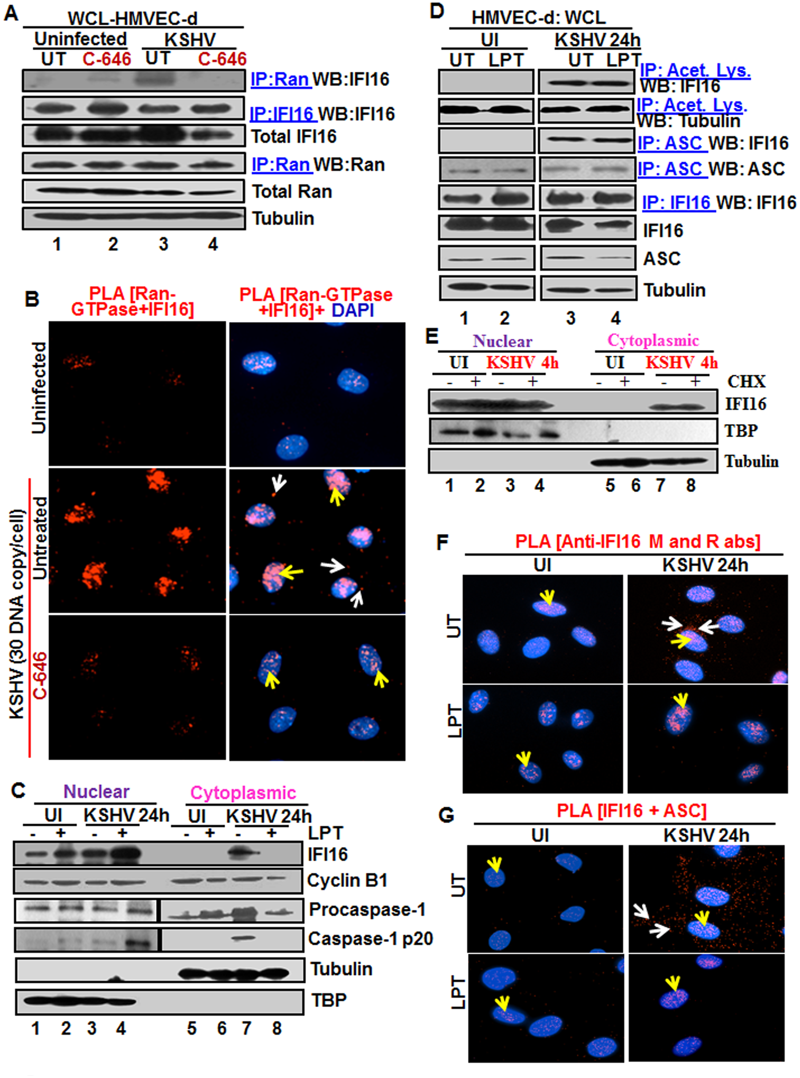 Effect of p300 inhibitor C-646 on IFI16 and Ran-GTPase association and effect of nuclear export blockage by Leptomycin B and protein synthesis inhibitor cycloheximide on the redistribution of IFI16 during <i>de novo</i> KSHV infection of HMVEC-d cells.