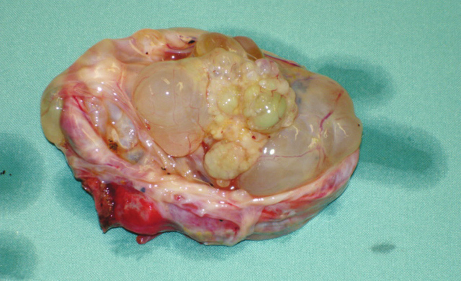 Cystadenom jater – preparát – případ 2  Photo 1. Liver cystadenoma – a preparation – case No. 2