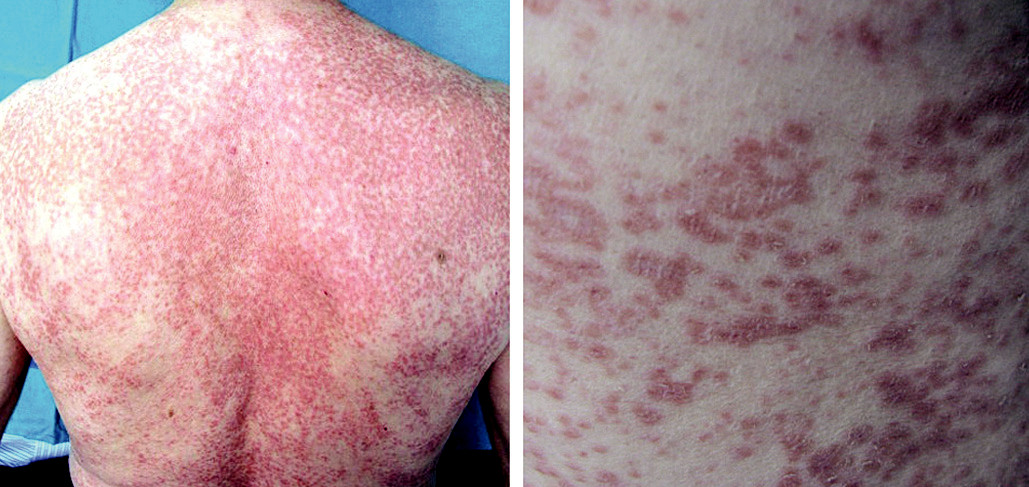 Fig. 1. Skin eruption shown by the patient. On the right a closer view of the lesions can be seen