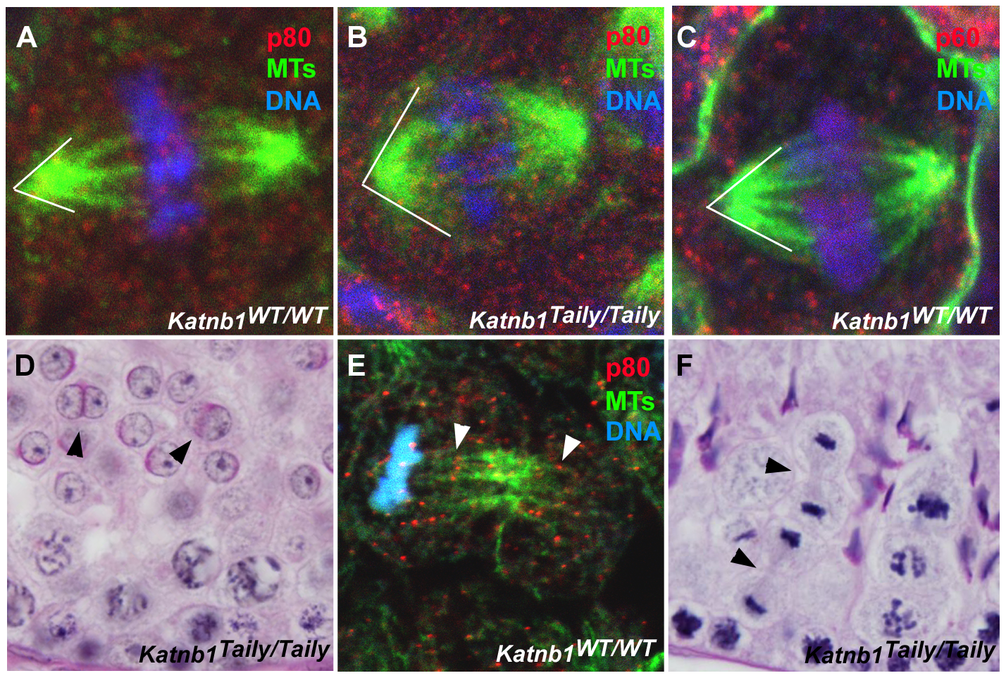Defective meiotic division in <i>Katnb1<sup>Taily/Taily</sup></i> male gametes.