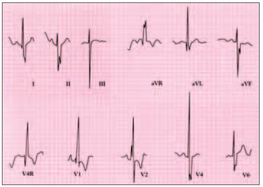 Elektrokardiogram pacienta s defektem septa síní typu ostium primum ukazuje deviaci osy doleva a blokádu pravého raménka.